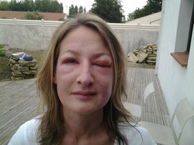 Photo de la jeune femme victime de l'attaque